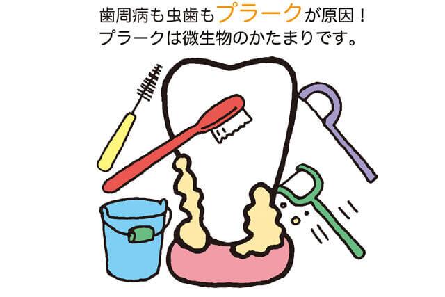 歯周病の原因